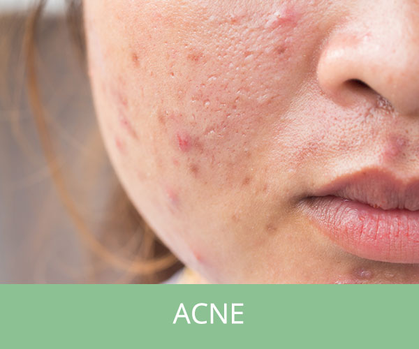 Acne behandeling nijmegen