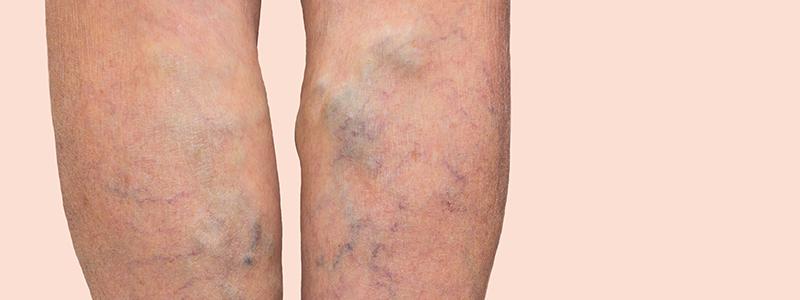 Afbeelding van benen waarop veneusoedeem te zien is.