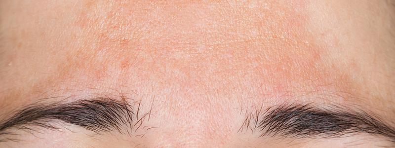 pigmentstoornissen behandeling nijmegen
