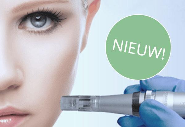 Afbeelding van micro needling therapie met de dermapen bij Esthetiek Huidtherapie in Nijmegen.